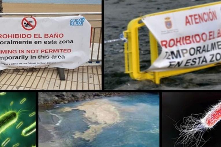 Sobre el cierre de playas, las microalgas y los vertidos de aguas residuales al mar (IV)